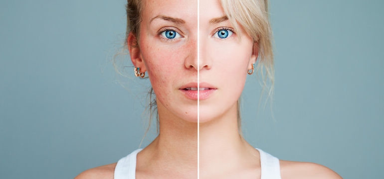 What Is Rosacea And How Is It Treated Simple Online Pharmacy